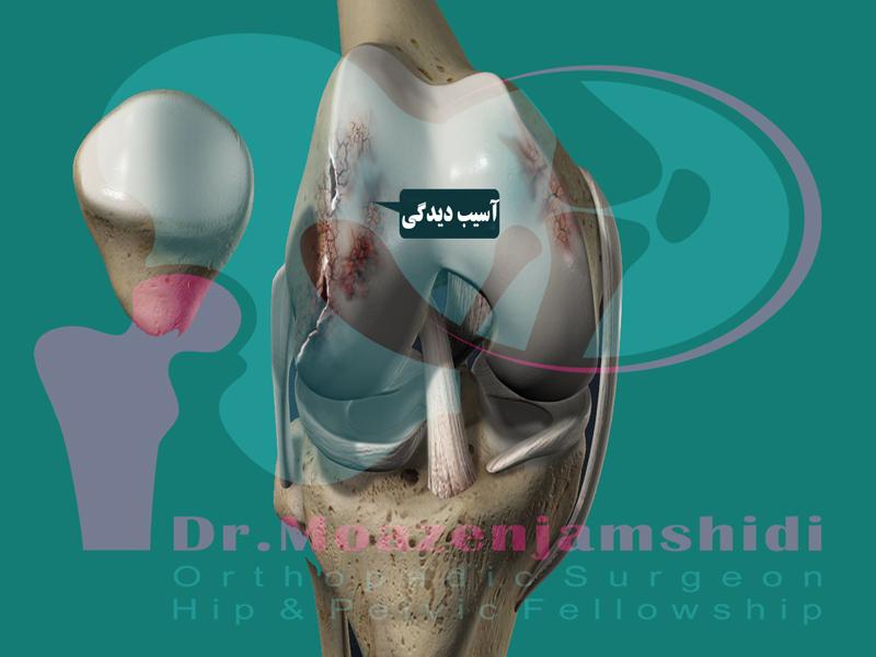 سیاه شدن استخوان ران؛ از علائم تا درمان