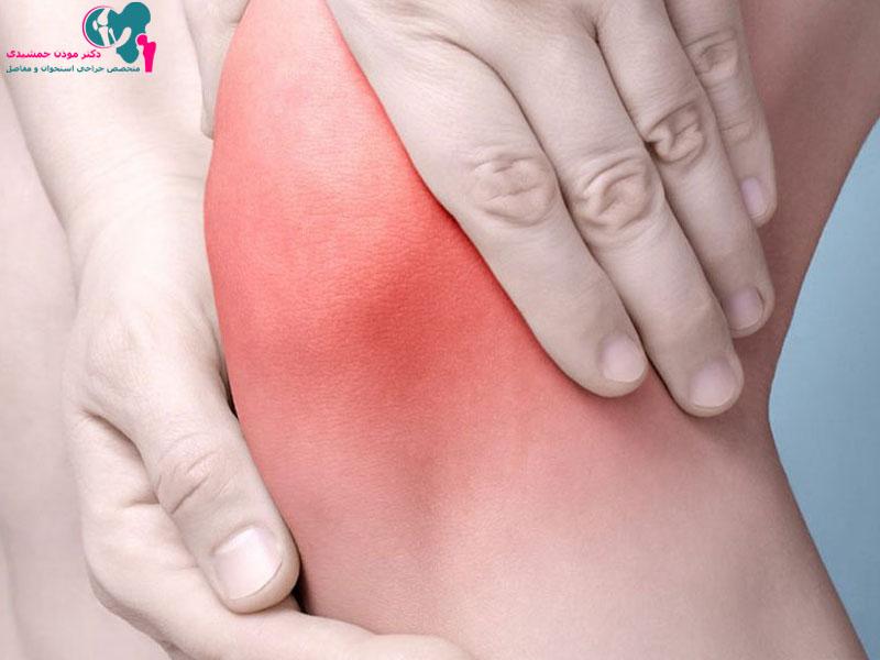 ورم مفصل نشانه چیست؟