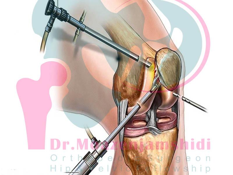 آرتروسکوپی زانو چیست و در چه مواردی کاربرد دارد؟