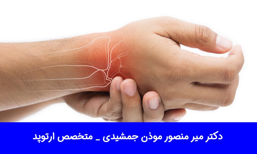 انواع آرتروز دست ها